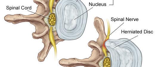 Image 1 Lumbar disc herniation Balmain chiropractor
