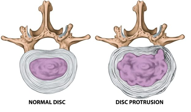 Disc herniation what is happening pathophysiology cause treatment management conservative care chiro physio chiropractor physiotherapy s3c sydney spine & sports centre balmain