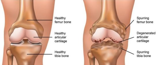 Balmain chiro - Knee osteoarthritis treatment