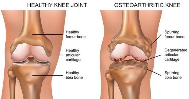 Balmain chiro - Knee osteoarthritis treatment