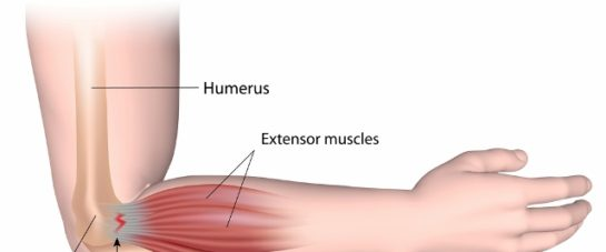 Tennis Elbow treatment - Sydney Spine & Sports Centre