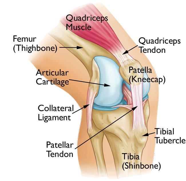 patellofemoral pain syndrome 1
