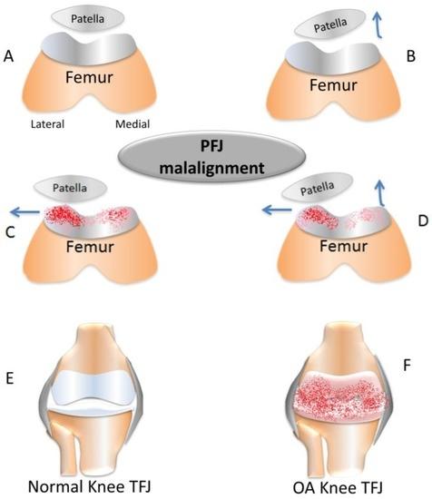 patellofemoral pain syndrome 2