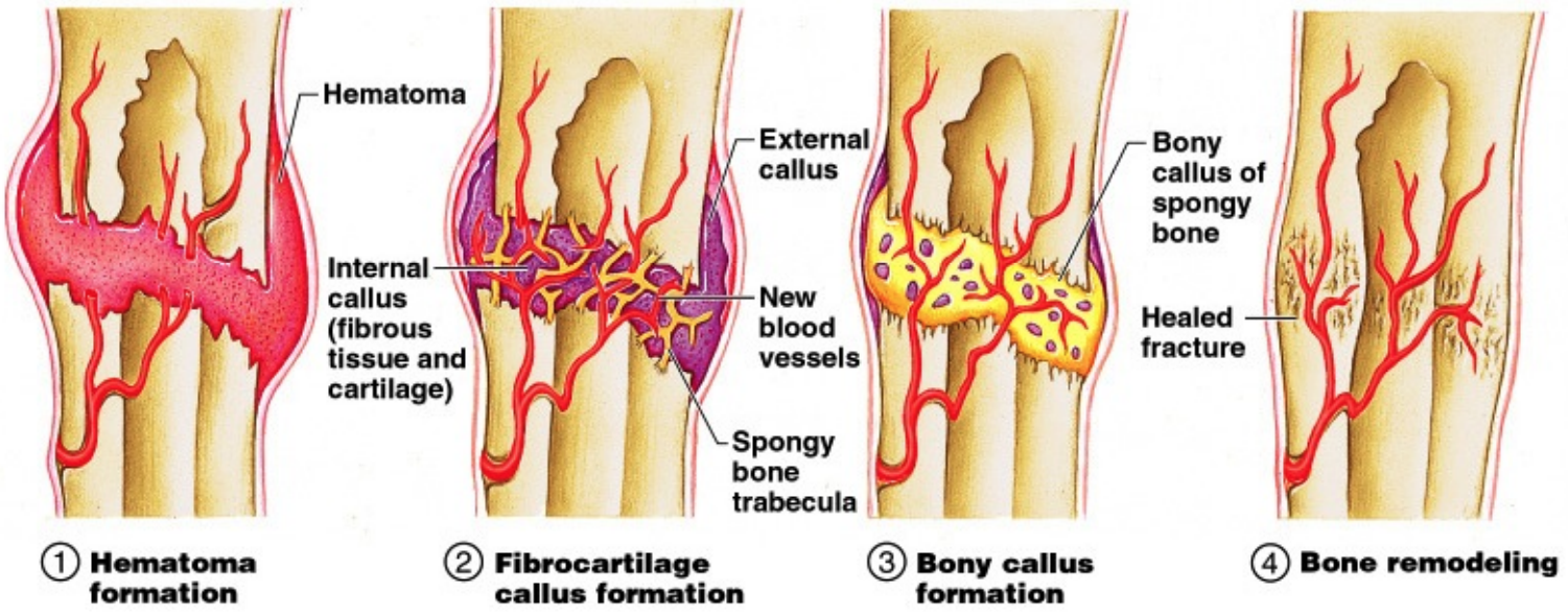 fracture healing phases